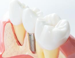 審美歯科治療とホワイトニングの違いは?